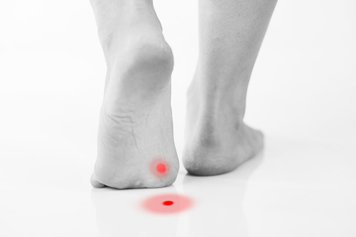 2 Weird, But Effective, Remedies For Plantar Warts! |