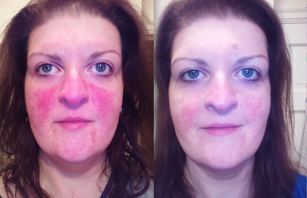Before and After Pictures of Rosacea
